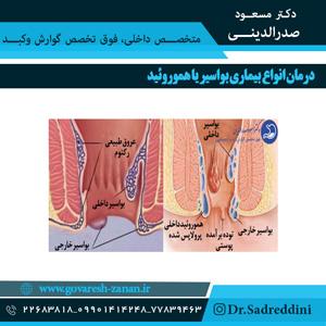 درمان انواع بیماری بواسیر یا هموروئید