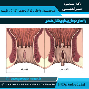 راه های درمان بیماری شقاق مقعدی