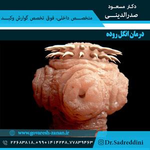 درمان-انگل-روده