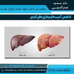 تشخیص آسیب ها و بیماری های کبدی